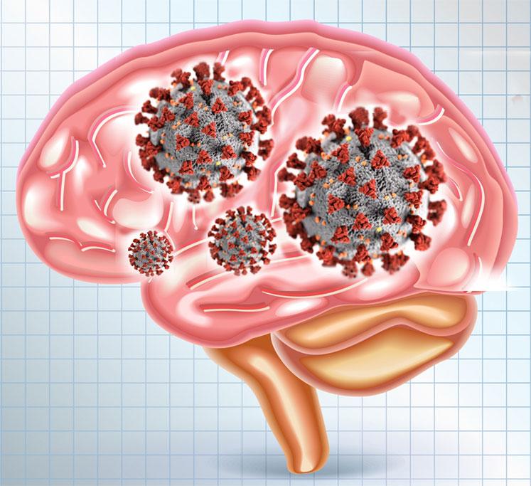 코로나바이러스 팬데믹, 뇌손상도 일으킬 수 있다는 과학자들의 경고